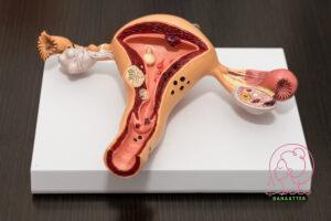 علاج فطريات المهبل أعراض وأساليب العلاج بنات طب
